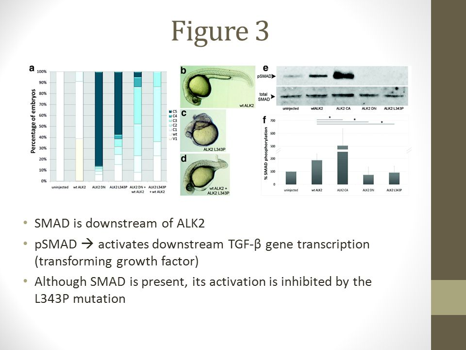 Figure 3 SMAD is downstream of ALK2 pSMAD  activates downstream TGF-β gene transcription (transforming growth factor) Although SMAD is present, its activation is inhibited by the L343P mutation