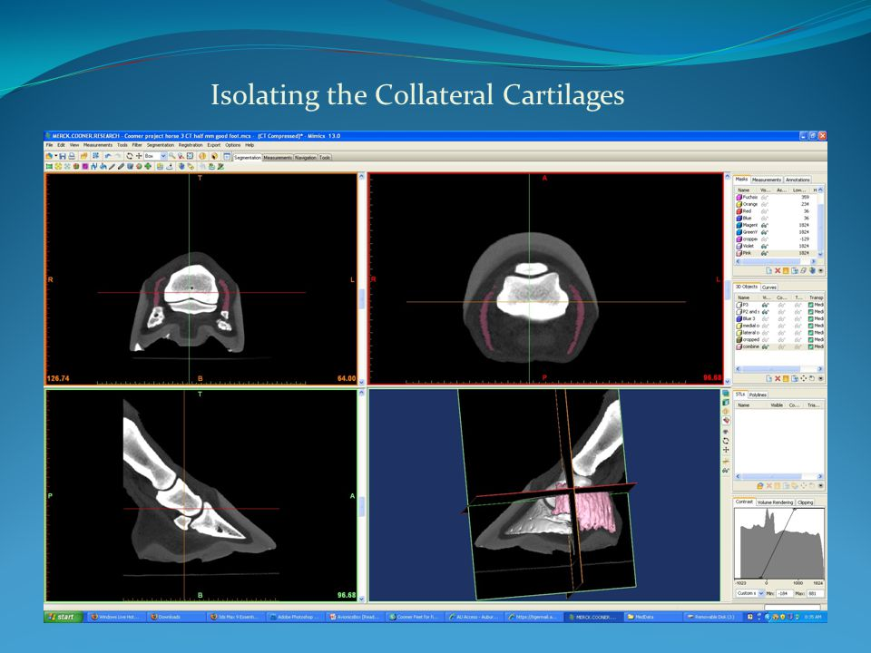 Isolating the Collateral Cartilages