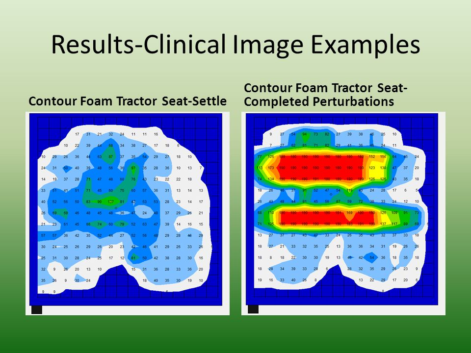 Results-Clinical Image Examples High Profile ROHO Air Cushion- settle High Profile ROHO Air Cushion- Completed Perturbations