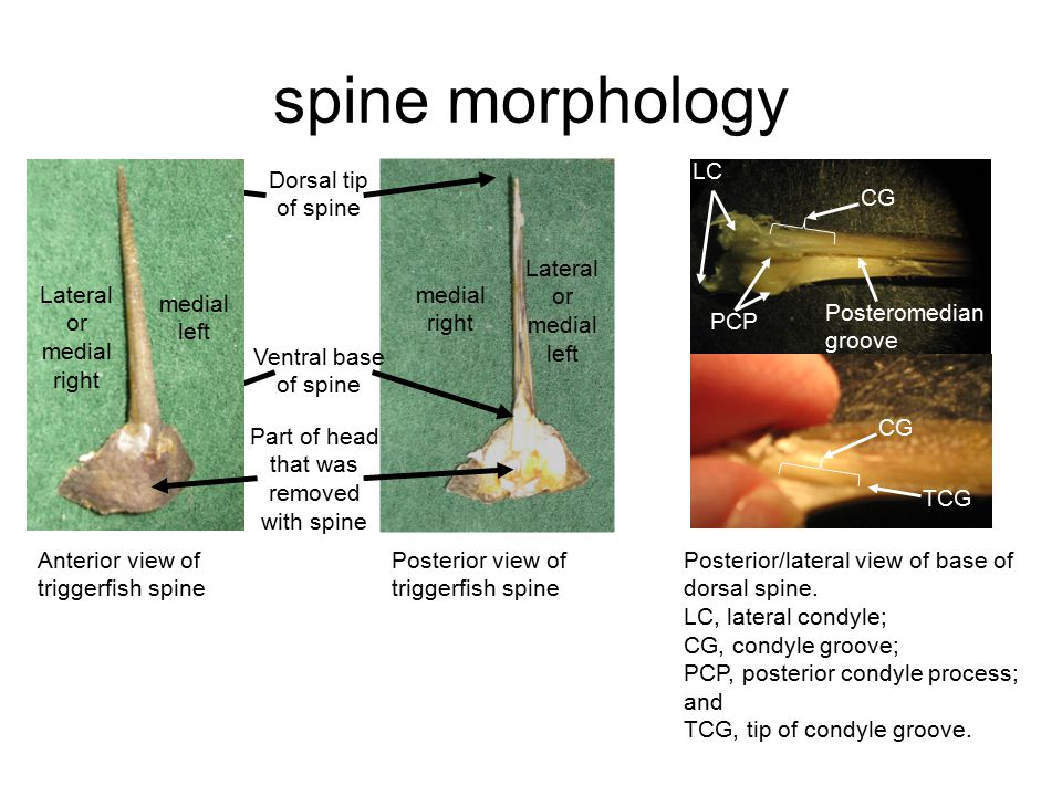 spine morphology Posterior view of triggerfish spine Anterior view of triggerfish spine Dorsal tip of spine Ventral base of spine Lateral or medial left medial right medial left Lateral or medial right Posterior/lateral view of base of dorsal spine.