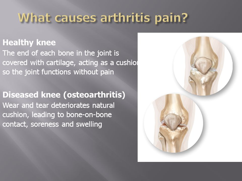 Does the knee hurt one or more days per week.Does the pain interfere with sleep.