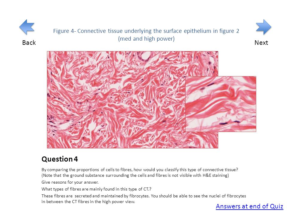 Question 4 By comparing the proportions of cells to fibres, how would you classify this type of connective tissue.