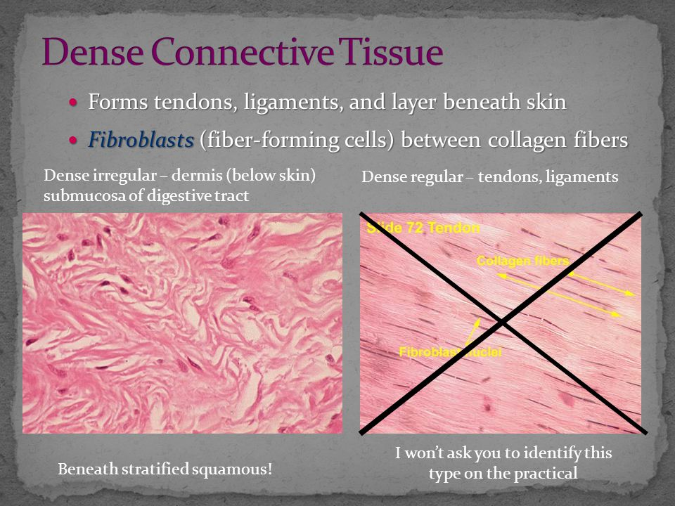 Forms tendons, ligaments, and layer beneath skin Forms tendons, ligaments, and layer beneath skin Fibroblasts (fiber-forming cells) between collagen fibers Fibroblasts (fiber-forming cells) between collagen fibers Beneath stratified squamous.