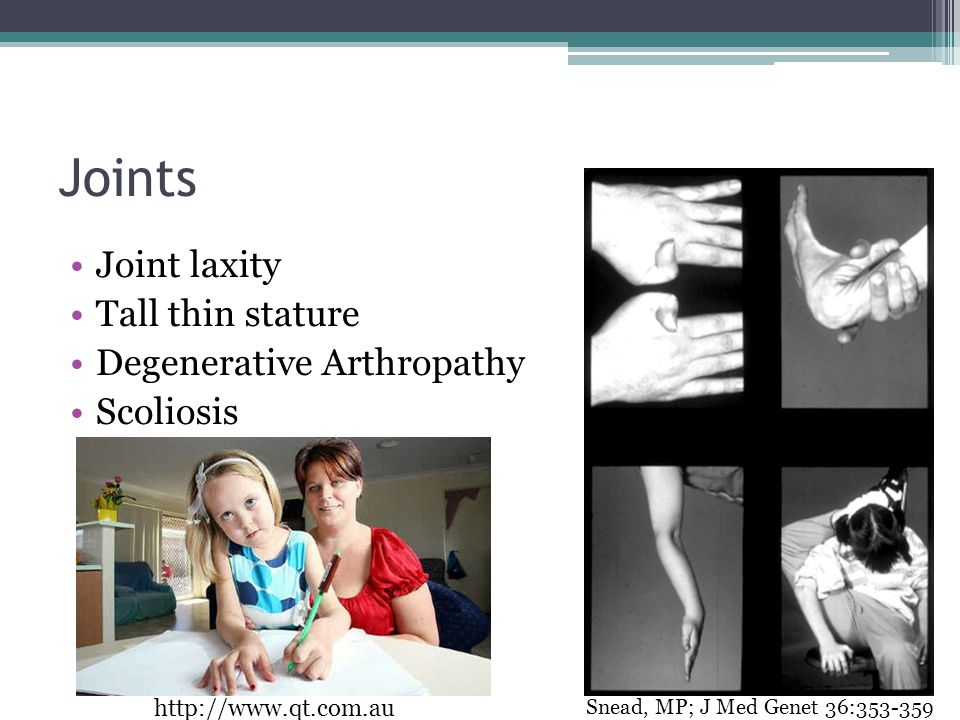 Joints Joint laxity Tall thin stature Degenerative Arthropathy Scoliosis Snead, MP; J Med Genet 36:353-359 http://www.qt.com.au