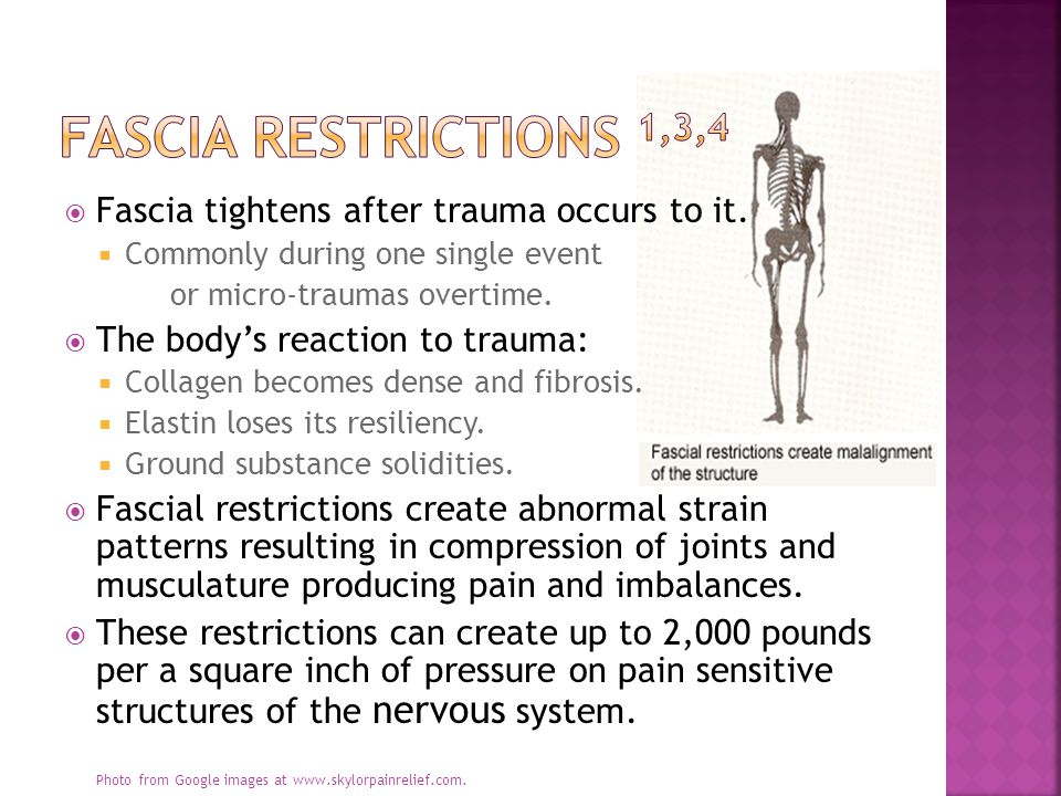  Fascia tightens after trauma occurs to it.