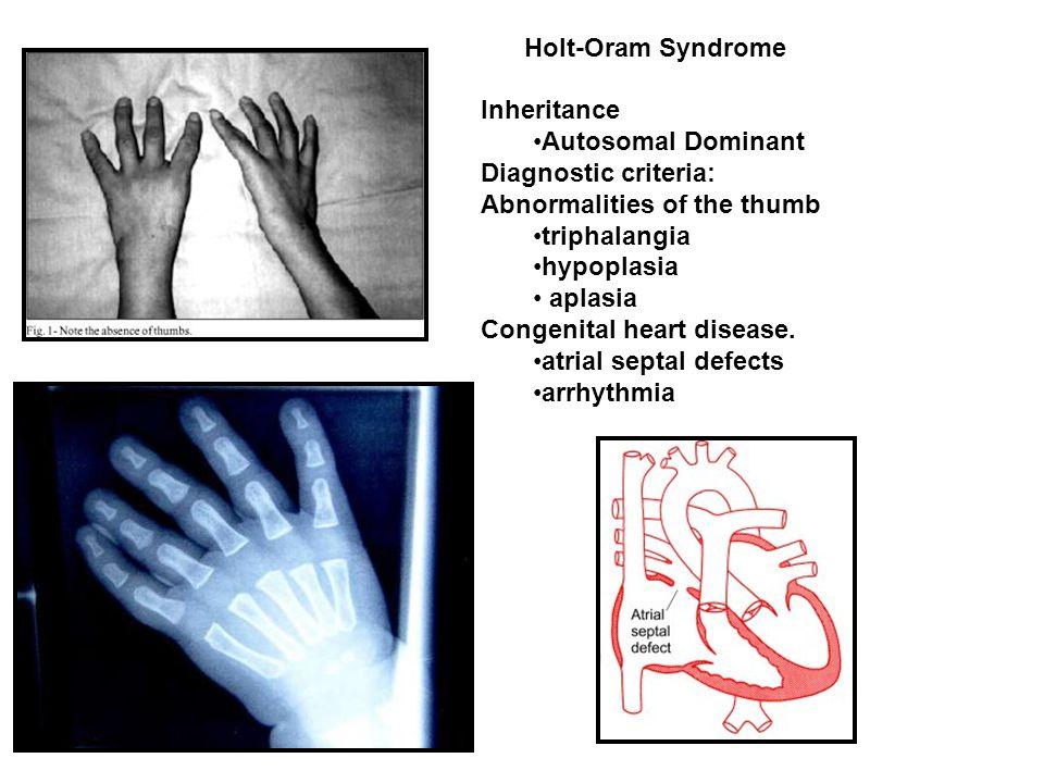 Inheritance Autosomal Dominant Diagnostic criteria: Abnormalities of the thumb triphalangia hypoplasia aplasia Congenital heart disease. atrial septal
