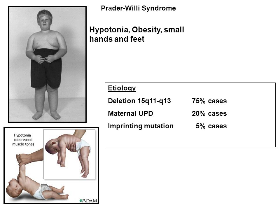 Prader-Willi Syndrome Hypotonia, Obesity, small hands and feet Etiology Deletion 15q11-q13 75% cases Maternal UPD 20% cases Imprinting mutation 5% cas