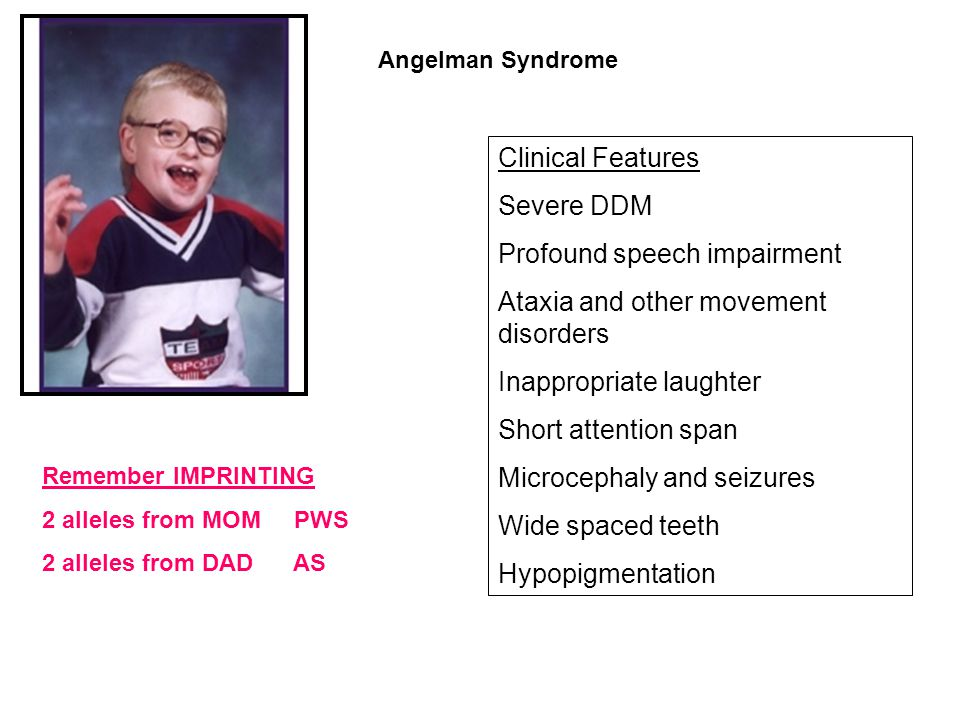 Clinical Features Severe DDM Profound speech impairment Ataxia and other movement disorders Inappropriate laughter Short attention span Microcephaly a