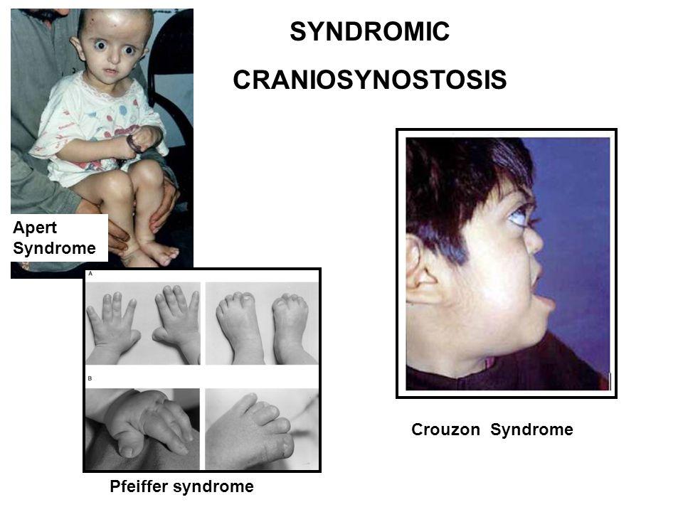 SYNDROMIC CRANIOSYNOSTOSIS Pfeiffer syndrome Apert Syndrome Crouzon Syndrome