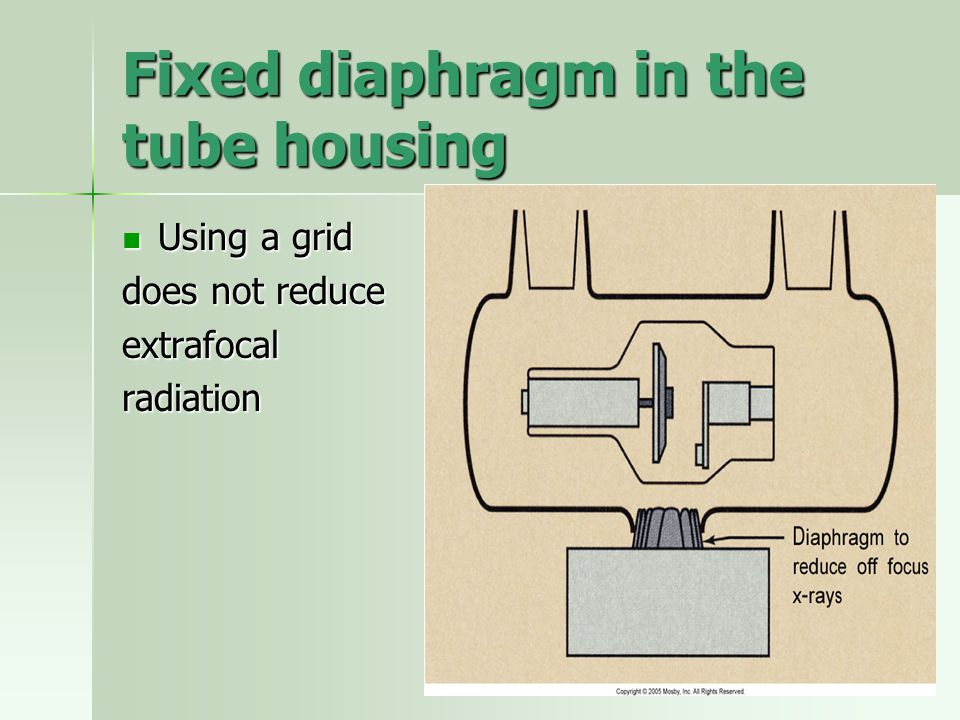 Fixed diaphragm in the tube housing Using a grid Using a grid does not reduce extrafocalradiation