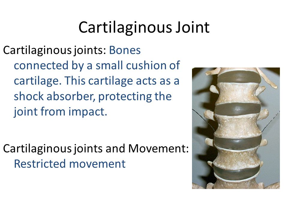 Cartilaginous Joint Cartilaginous joints: Bones connected by a small cushion of cartilage. This cartilage acts as a shock absorber, protecting the joi