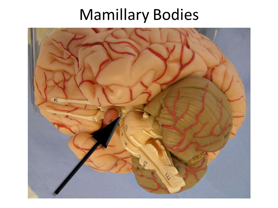 Mamillary Bodies