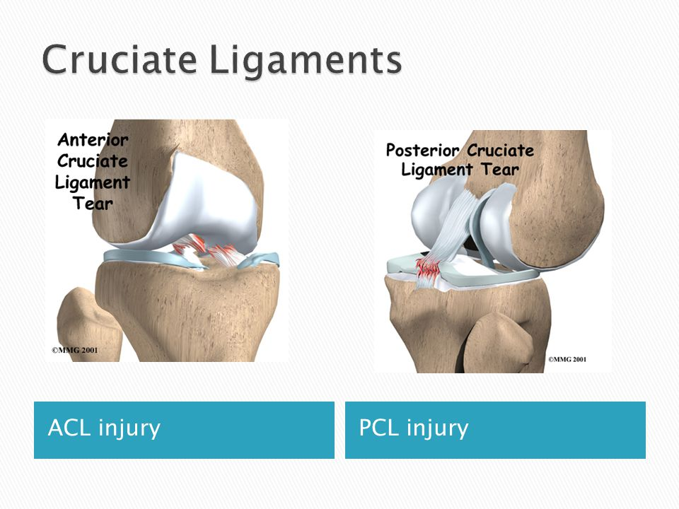 ACL injuryPCL injury