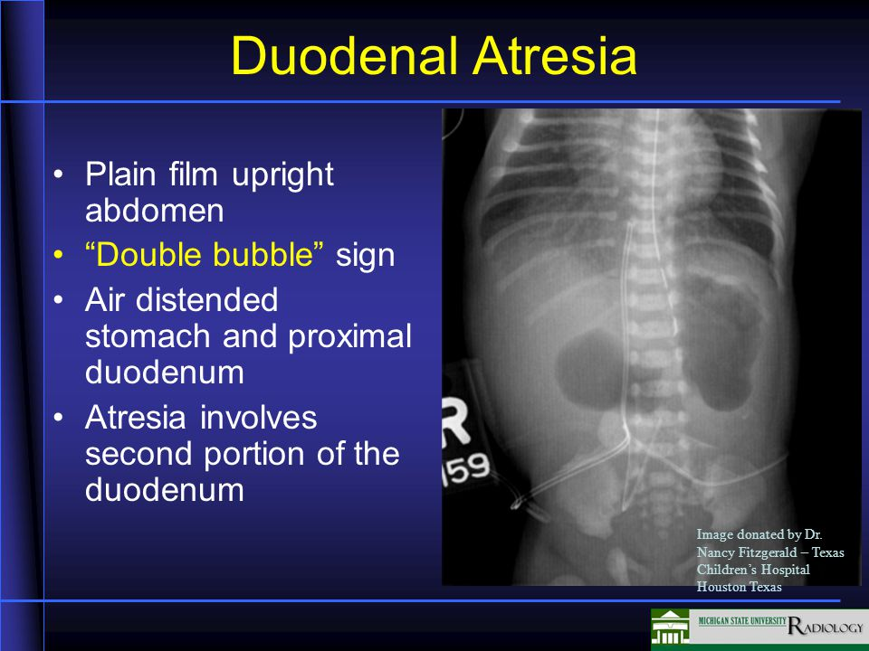Duodenal Atresia Plain film upright abdomen Double bubble sign Air distended stomach and proximal duodenum Atresia involves second portion of the duodenum Image donated by Dr.