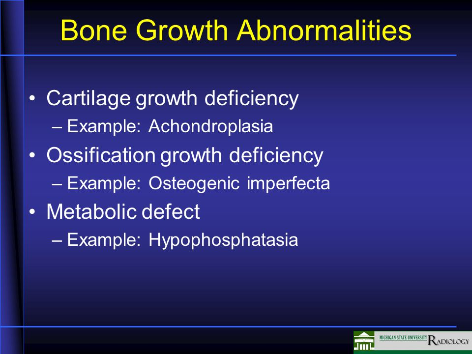 Bone Growth Abnormalities Cartilage growth deficiency –Example: Achondroplasia Ossification growth deficiency –Example: Osteogenic imperfecta Metaboli