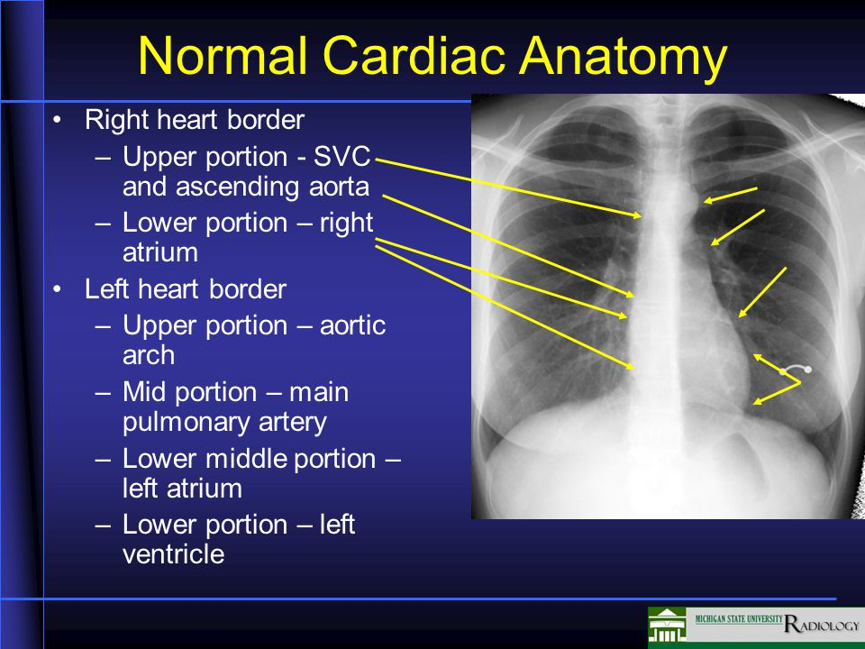 Normal Cardiac Anatomy Right heart border –Upper portion - SVC and ascending aorta –Lower portion – right atrium Left heart border –Upper portion – aortic arch –Mid portion – main pulmonary artery –Lower middle portion – left atrium –Lower portion – left ventricle