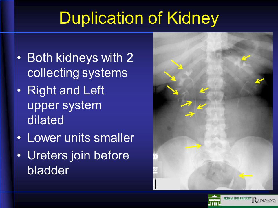 Duplication of Kidney Both kidneys with 2 collecting systems Right and Left upper system dilated Lower units smaller Ureters join before bladder