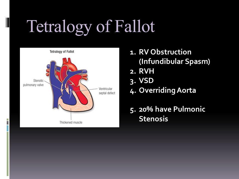 Tetralogy of Fallot 1.RV Obstruction (Infundibular Spasm) 2.RVH 3.VSD 4.Overriding Aorta 5.20% have Pulmonic Stenosis