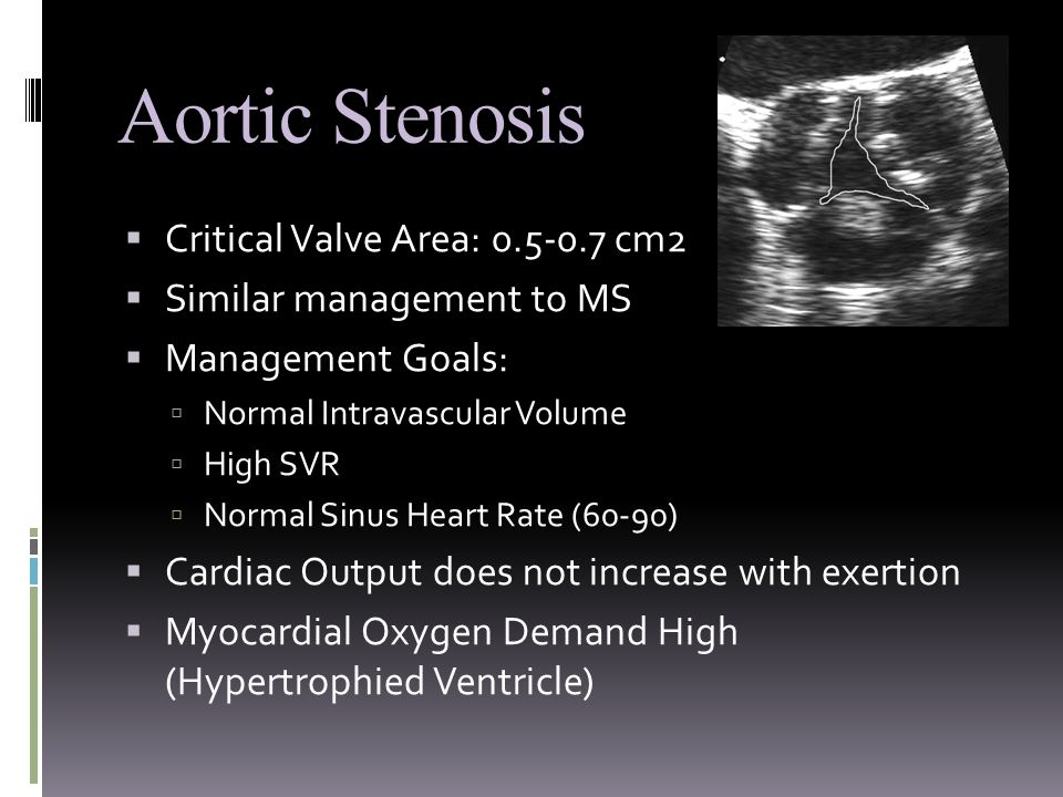 Aortic Stenosis  Critical Valve Area: 0.5-0.7 cm2  Similar management to MS  Management Goals:  Normal Intravascular Volume  High SVR  Normal Sinus Heart Rate (60-90)  Cardiac Output does not increase with exertion  Myocardial Oxygen Demand High (Hypertrophied Ventricle)