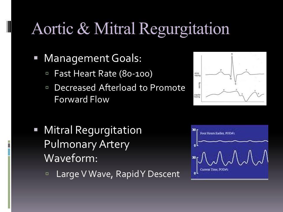 Aortic & Mitral Regurgitation  Management Goals:  Fast Heart Rate (80-100)  Decreased Afterload to Promote Forward Flow  Mitral Regurgitation Pulmonary Artery Waveform:  Large V Wave, Rapid Y Descent