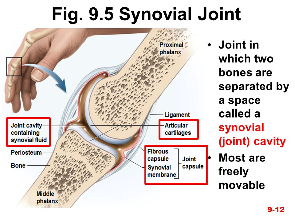 Fig. 9.5 Synovial Joint Joint in which two bones are separated by a space called a synovial (joint) cavity Most are freely movable 9-12