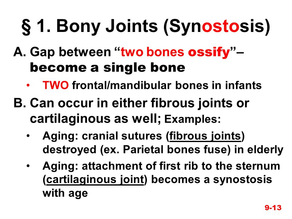"""9-13 § 1. Bony Joints (Synostosis) A.Gap between """"two bones ossify """"– become a single bone TWO frontal/mandibular bones in infants B.Can occur in eith"""