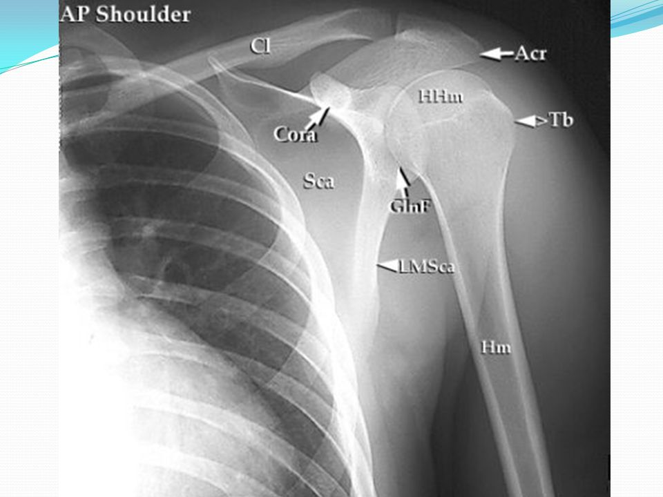 Post-reduction treatment for shoulder dislocation Ice 72 hrs, NSAID 7-14 days Immobilization 3-6 weeks Capsule needs time to heal Physical Therapy referral for rehab Less immobilization (1 week) and quicker rehab in pts >40 (to prevent stiffness) and in recurrent dislocators