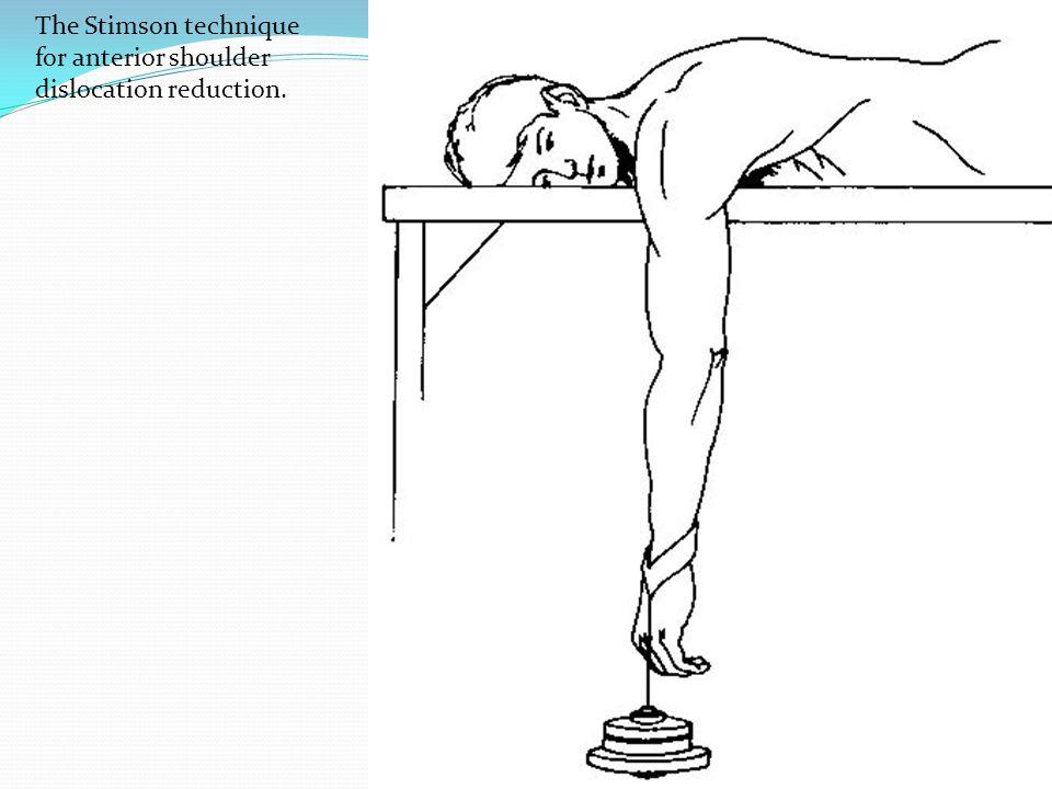 The Stimson technique for anterior shoulder dislocation reduction.