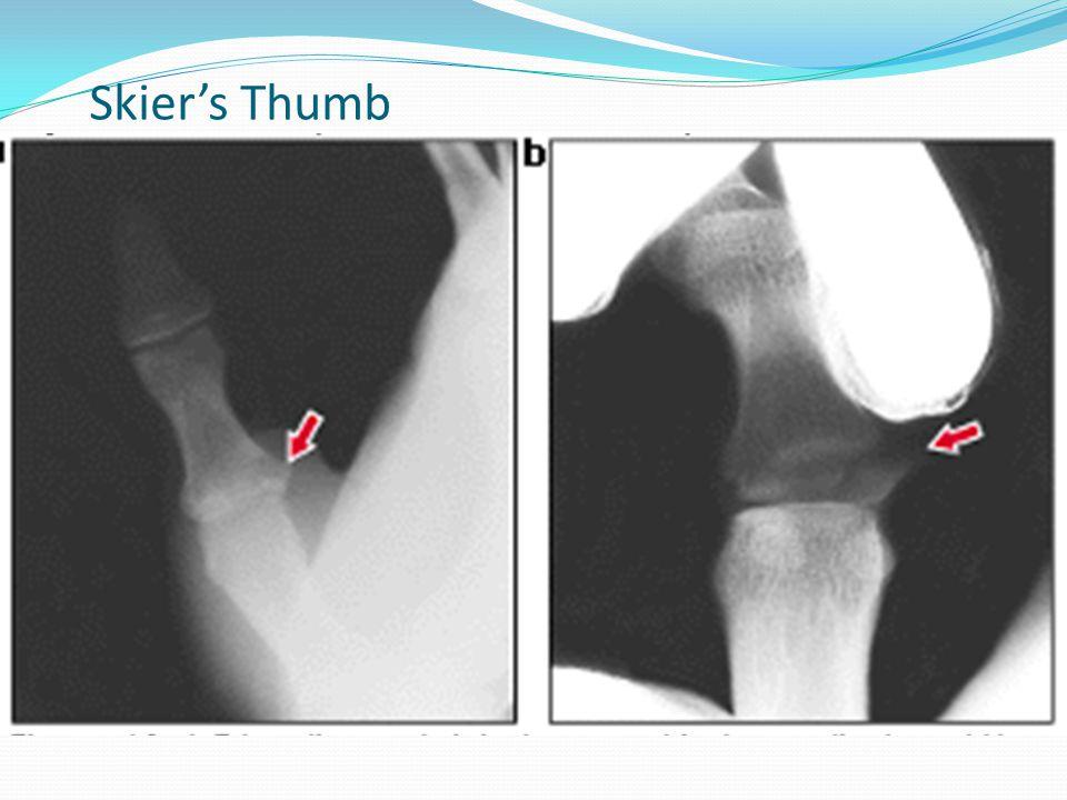 Skier's Thumb