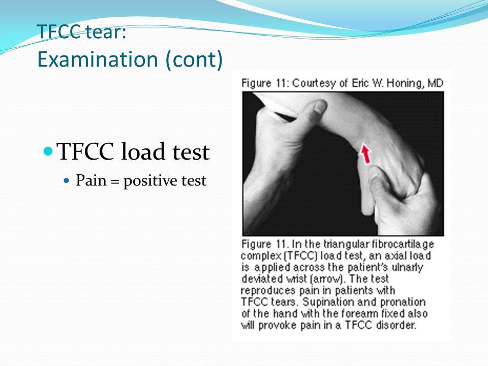 TFCC tear: Examination (cont) TFCC load test Pain = positive test