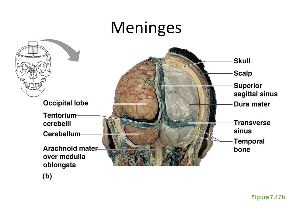 Meninges Figure 7.17b