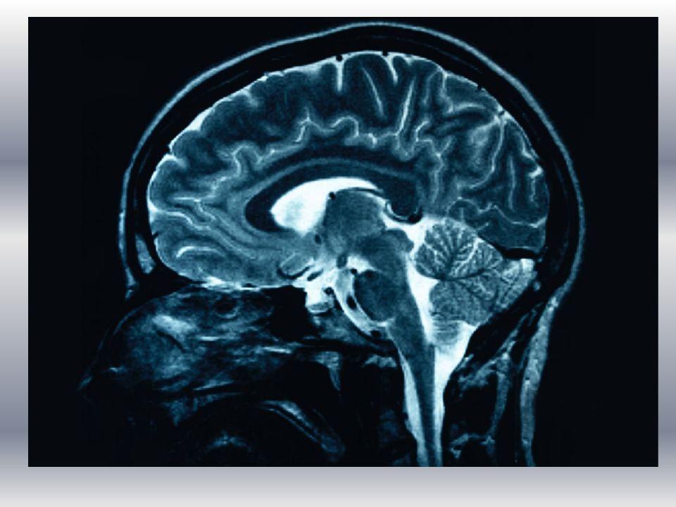 Brain Stem (Medulla) Medulla Oblongata basic body functions –breathing –heartbeat –digestion –swallowing –vomiting –coughing –blinking HOMEOSTASIS