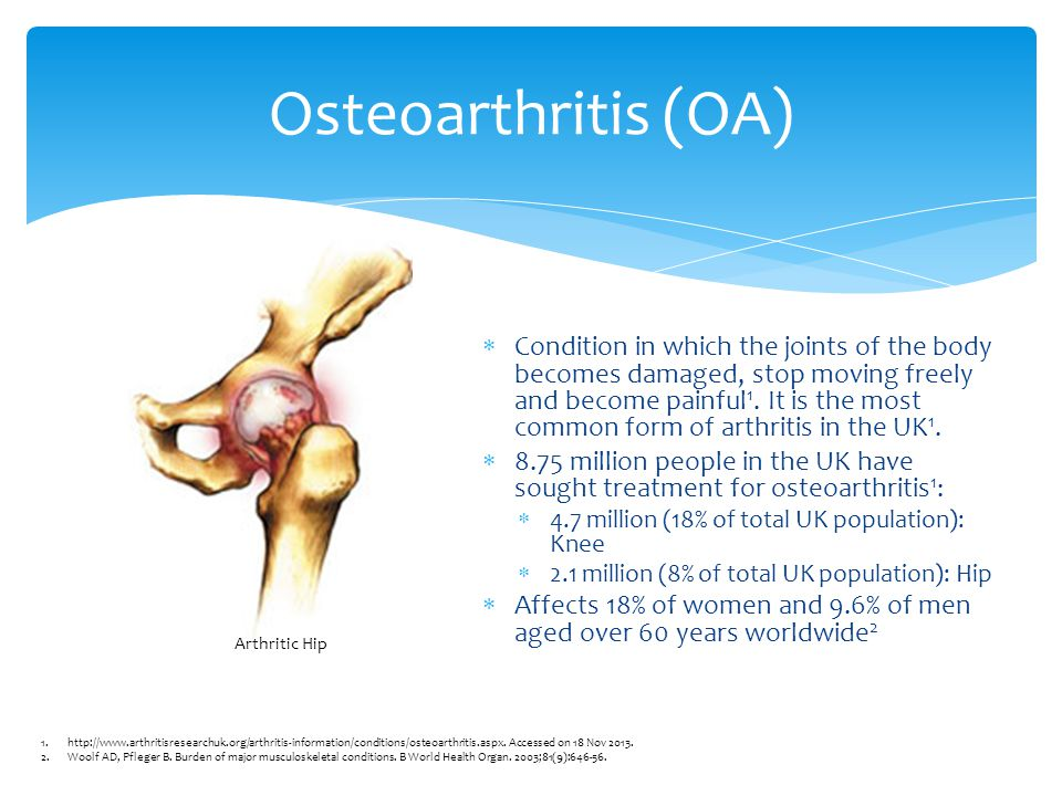  Causes:  Late 40s or over  Females are more likely than males  Hereditary  Overweight  Previous joint injury  Physically demanding job with repetitive movements  Joint damage from another disease 1 Most likely factors for developing OA 1.