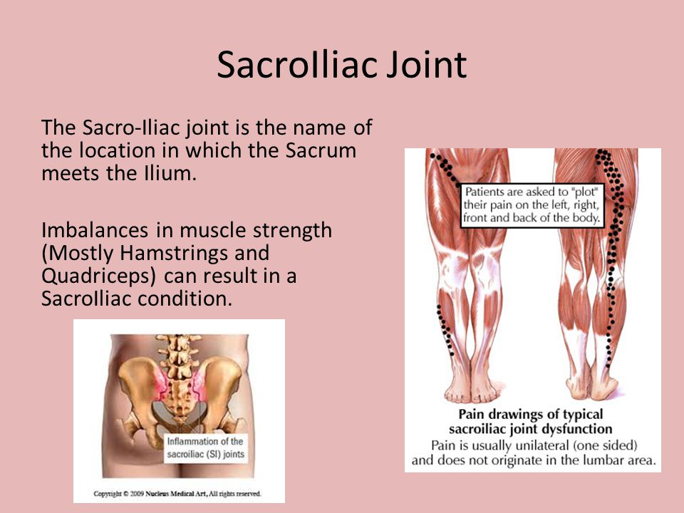 SacroIliac Joint The Sacro-Iliac joint is the name of the location in which the Sacrum meets the Ilium. Imbalances in muscle strength (Mostly Hamstrin