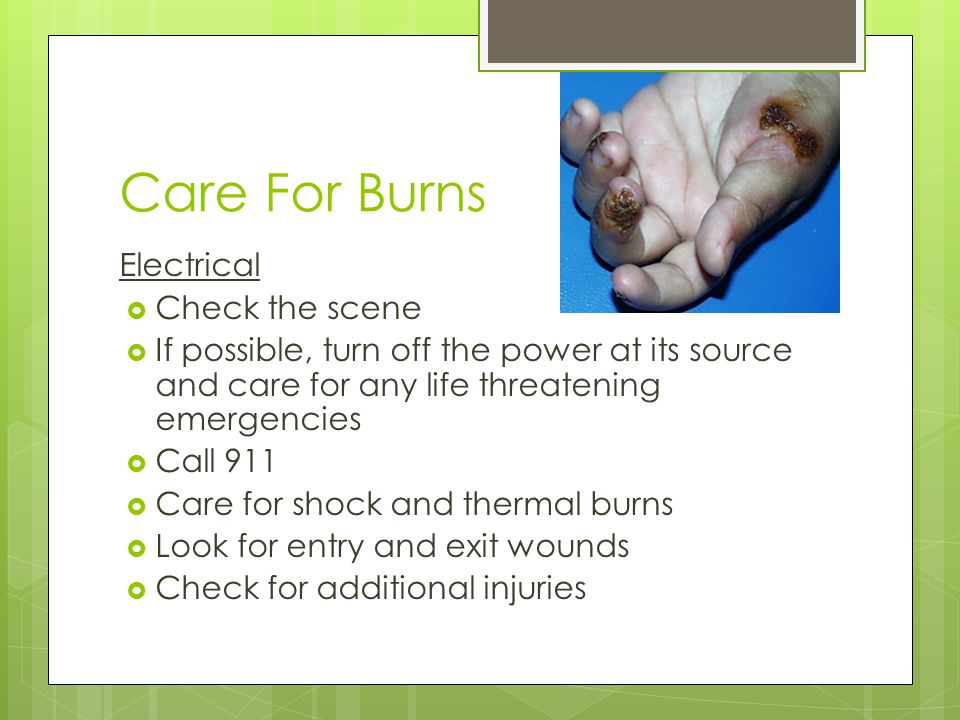 Care For Burns Electrical  Check the scene  If possible, turn off the power at its source and care for any life threatening emergencies  Call 911 