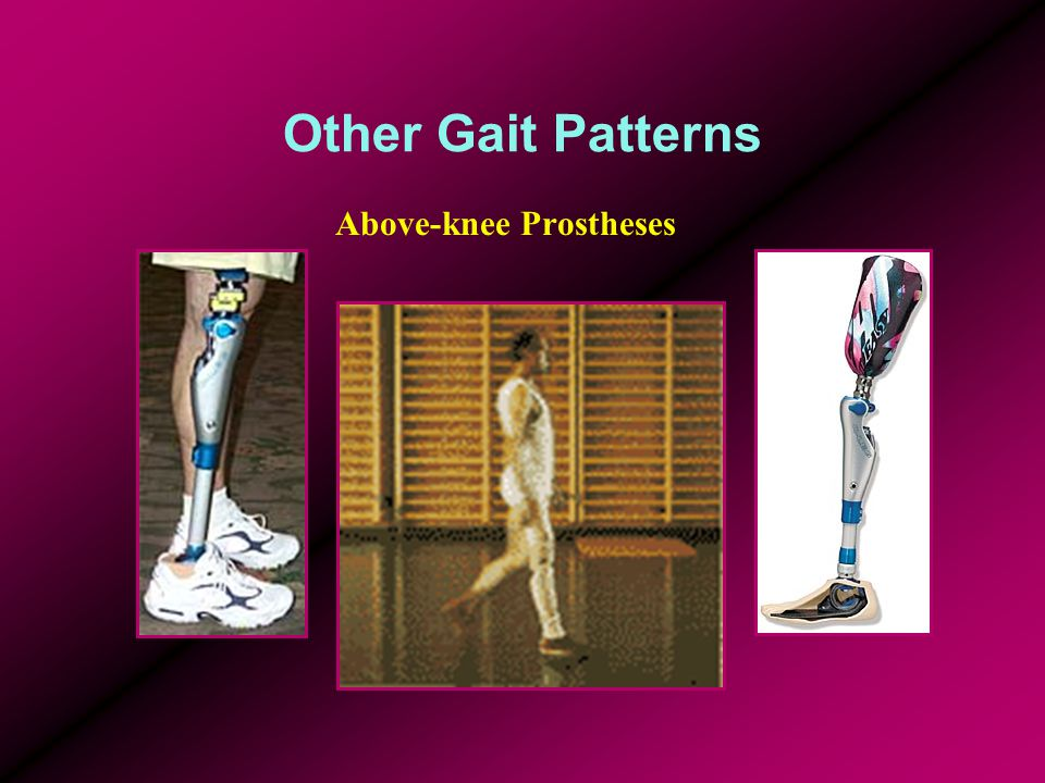 Other Gait Patterns Above-knee Prostheses