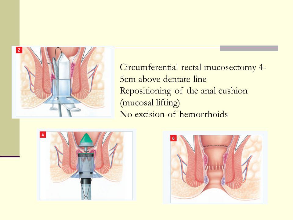 Circumferential rectal mucosectomy 4- 5cm above dentate line Repositioning of the anal cushion (mucosal lifting) No excision of hemorrhoids