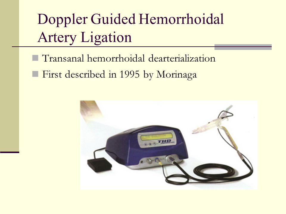 Doppler Guided Hemorrhoidal Artery Ligation Transanal hemorrhoidal dearterialization First described in 1995 by Morinaga