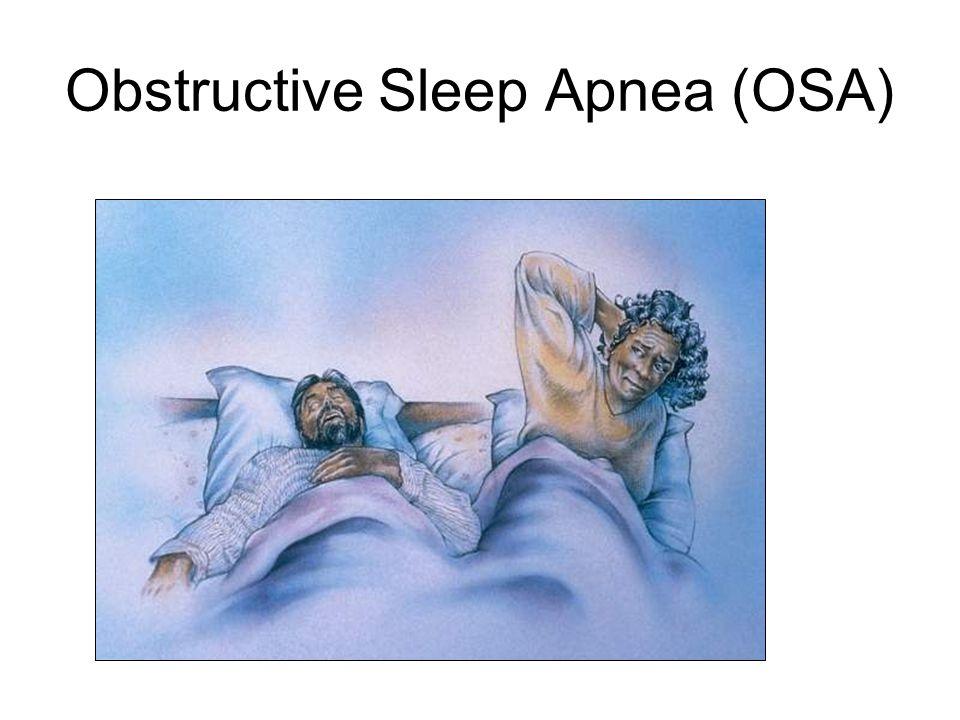 Sleep Apnea Is a Breathing Disorder That Disrupts Sleep