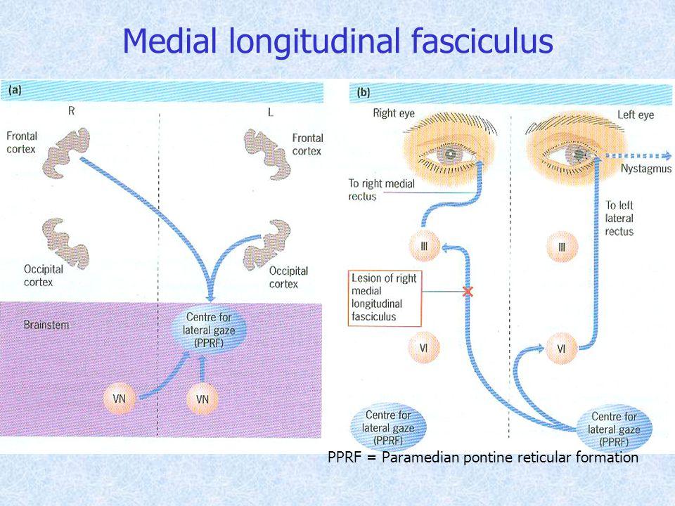 PPRF = Paramedian pontine reticular formation Medial longitudinal fasciculus
