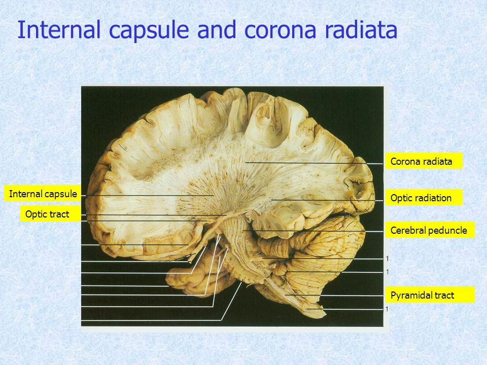 Internal capsule Corona radiata Optic radiation Cerebral peduncle Optic tract Pyramidal tract Internal capsule and corona radiata