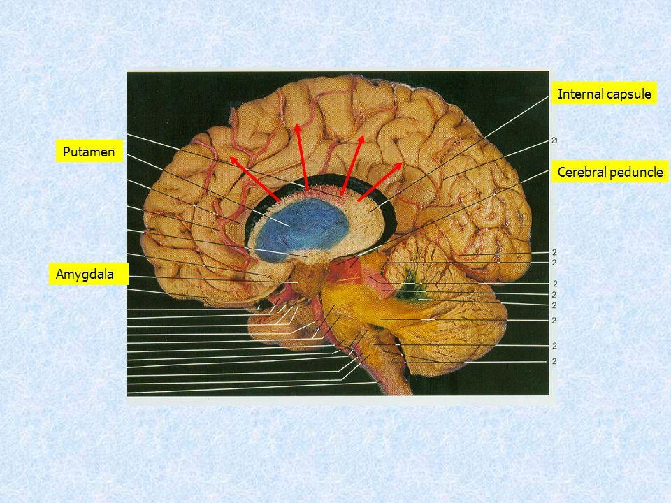 Cerebral peduncle Internal capsule Putamen Amygdala