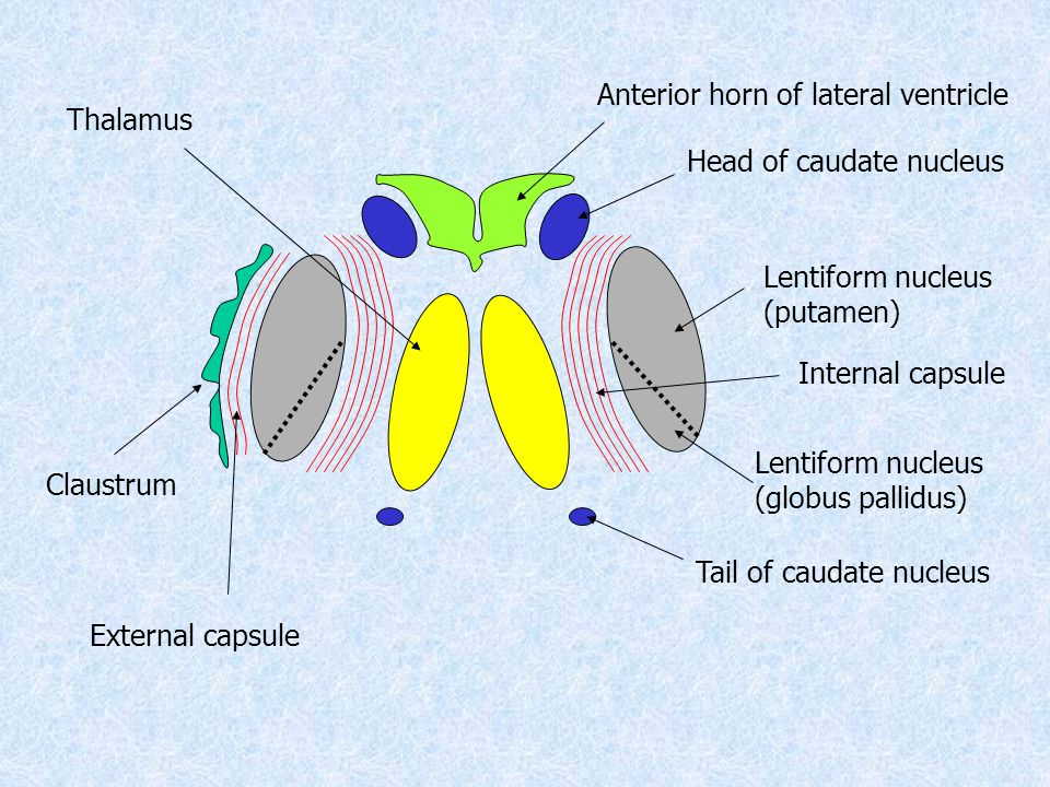 Anterior horn of lateral ventricle Head of caudate nucleus Tail of caudate nucleus Thalamus Lentiform nucleus (putamen) Internal capsule Claustrum External capsule Lentiform nucleus (globus pallidus)