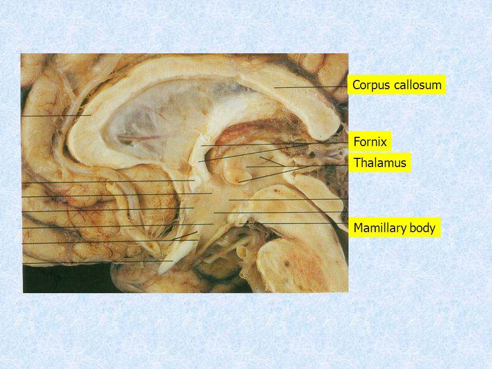 Corpus callosum Fornix Thalamus Mamillary body