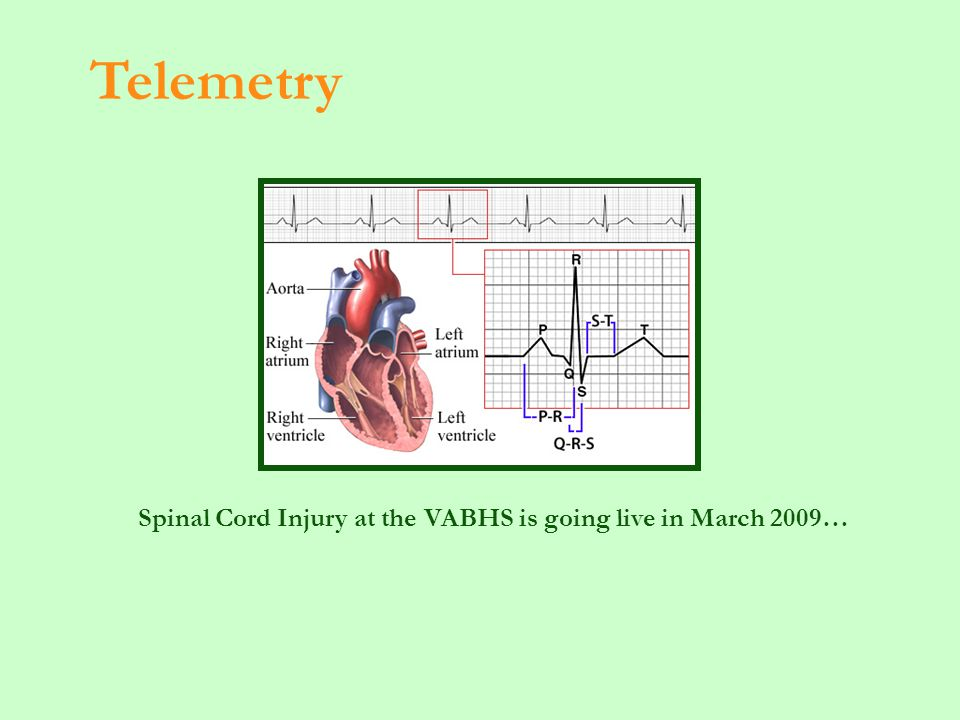 Spinal Cord Injury at the VABHS is going live in March 2009… Telemetry