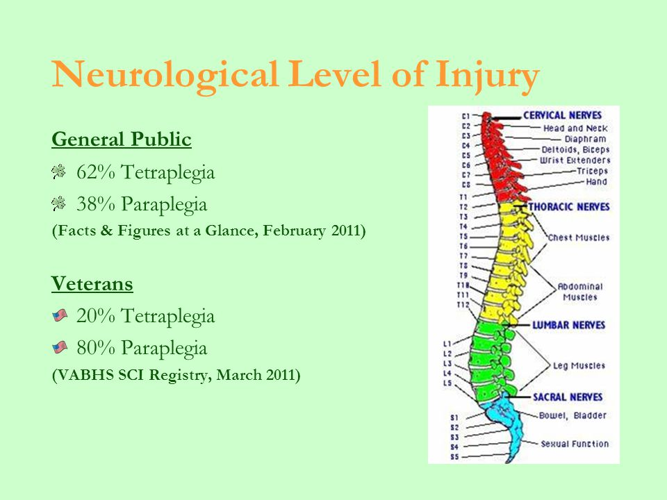 Neurological Level of Injury General Public 62% Tetraplegia 38% Paraplegia (Facts & Figures at a Glance, February 2011) Veterans 20% Tetraplegia 80% Paraplegia (VABHS SCI Registry, March 2011)