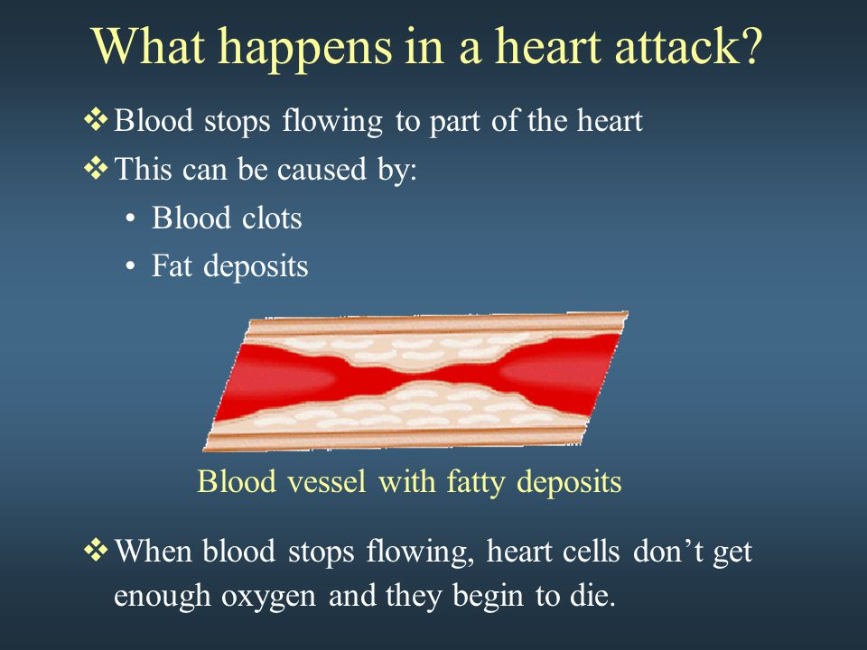 What happens in a heart attack?  Blood stops flowing to part of the heart  This can be caused by: Blood clots Fat deposits  When blood stops flowin