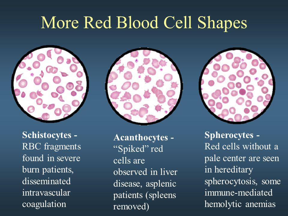 More Red Blood Cell Shapes Schistocytes - RBC fragments found in severe burn patients, disseminated intravascular coagulation Acanthocytes - Spiked red cells are observed in liver disease, asplenic patients (spleens removed) Spherocytes - Red cells without a pale center are seen in hereditary spherocytosis, some immune-mediated hemolytic anemias