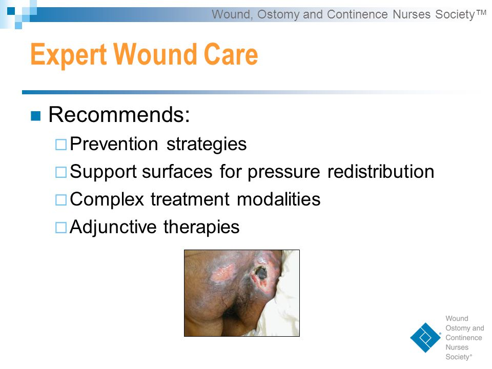 Wound, Ostomy and Continence Nurses Society™ Expert Wound Care Recommends:  Prevention strategies  Support surfaces for pressure redistribution  Complex treatment modalities  Adjunctive therapies