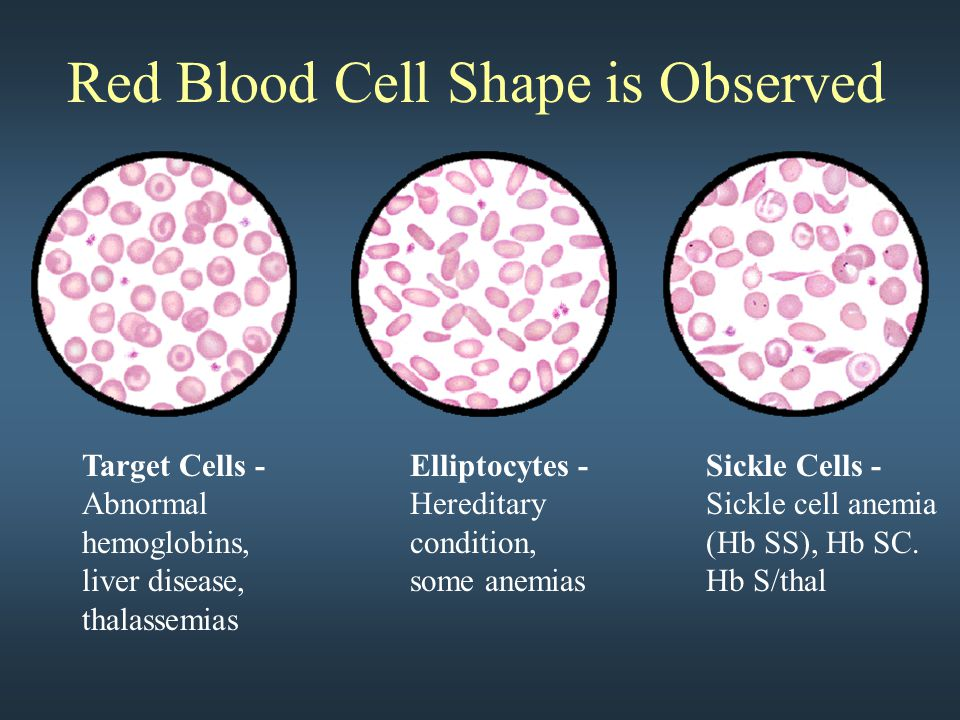 Red Blood Cell Shape is Observed Target Cells - Abnormal hemoglobins, liver disease, thalassemias Elliptocytes - Hereditary condition, some anemias Si